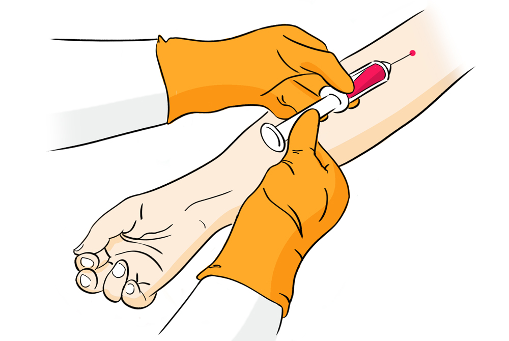 blood_sampling